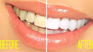 HOW TO WHITEN TEETH AT HOME IN 2 MINUTES | SIMPLE | 100% NATURALLY | GUARANTEED WHITEN TEETH