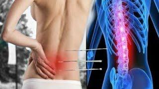 Cara Mengobati Sakit Pinggang Yang Benar Tanpa Obat Secara Alami Dan Ampuh