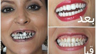5 خلطات طبيعية لتبييض الأسنان| مع ميمي
