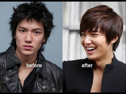 Xxx Mp4 Lee Min Ho Before And After Plastic Surgery 3gp Sex