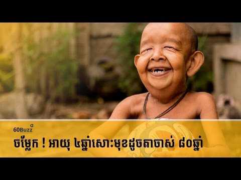 ចម្លែក ! អាយុ ៤ឆ្នាំសោះមុខដូចតាចាស់ ៨០ឆ្នាំ- Koh Santepheap TV