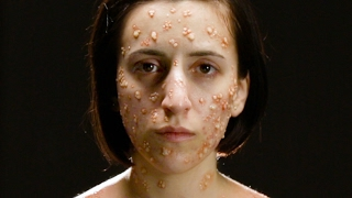 What Deadly Diseases Look Like On Your Body