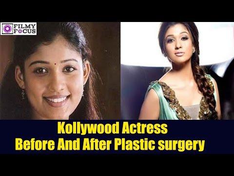 Kollywood  Top Actress Plastic Surgery Before And After    Nayanthara    Samantha    Kajal Agarwal