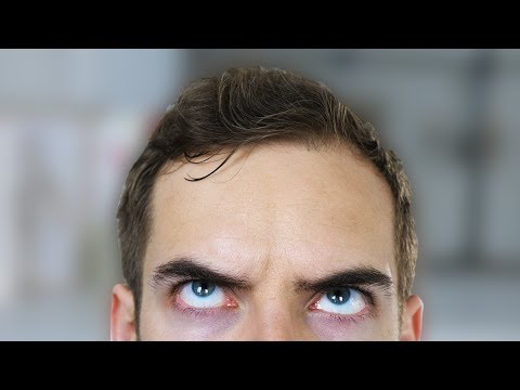 FIX MY FOREHEAD YIAY 333