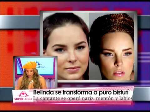 Famosas antes y después de una cirugía de nariz Gabriela Natale