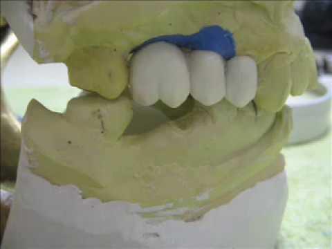 Provisorio sobre implante Protese Dentaria