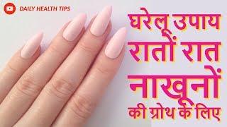 रातों रात नाखून बढ़ाने के घरेलू उपाय || नाखूनों की ग्रोथ के लिए घरेलू उपाय  || Nails Care