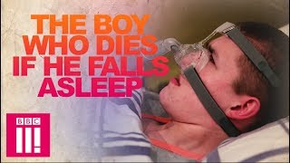 Our Teen Who Dies If He Falls Asleep   Living Differently