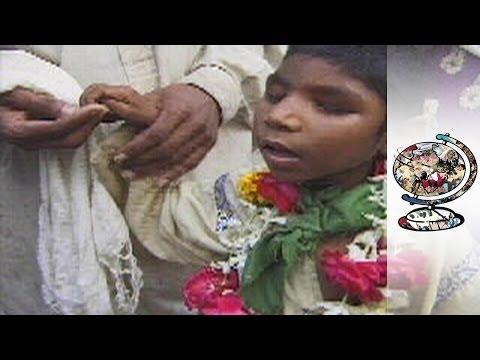 Myths and Corruption Surrounding Pakistan's Microcephalics
