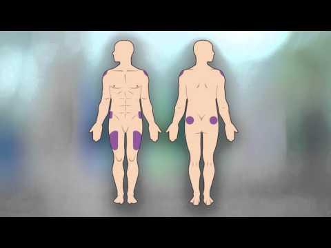 Cómo Aplicarse una Inyección Intramuscular a sí mismo