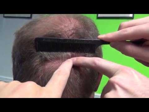 Scar Search Episode 3B- NY Hair Transplant Feller and Bloxham