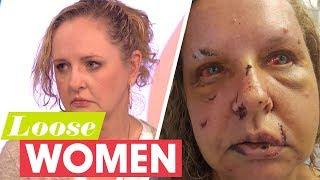 My Husband Brutally Beat Me Until He Thought I Was Dead | Loose Women