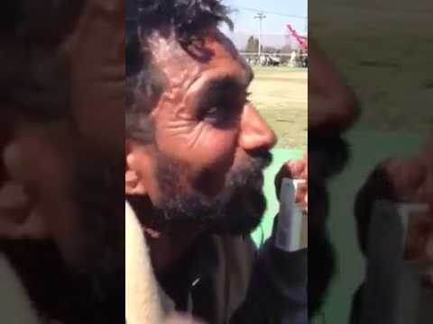 Xxx Mp4 Funny Dasi Pakistani 3gp Sex
