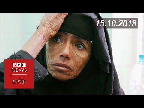 Xxx Mp4 Yemen Could Be Worst Famine In 100 Years BBC Tamil Latest News பிபிசி தமிழ் செய்தியறிக்கை 3gp Sex