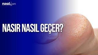 Nasır İçin Doğal Çözümler | Sağlık | Nasil.com