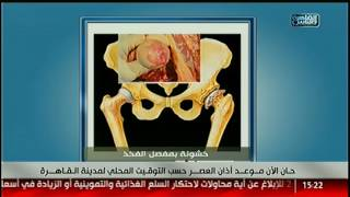 القاهرة والناس   فنيات علاج خشونة مفصل الفخد مع دكتور محمد عابدين فى الدكتور