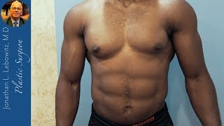 Gynecomastia Gland Surgery On A Fit Army Male At The Long Island Gynecomastia Center By Dr.Lebowitz