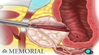 TURP Transurethral Resection Prostate Surgery