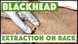 Updated blackhead cyst x2 extraction on the back!  For medical education- NSFE.