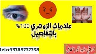 علامات الزوهري بتفصيل قد تكون زوهري ولا تعرف الراقي المغربي رشيد أبو إسحاق