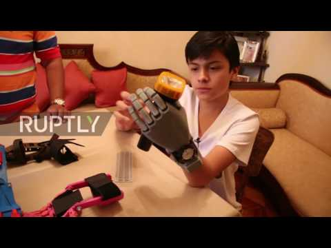 Xxx Mp4 Bolivia 14yo Without Hand 3D Prints His Own Prosthesis For Less Than 100 3gp Sex