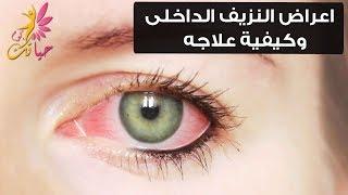 اعراض النزيف الداخلى وكيفية علاجه