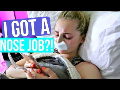 I GOT A NOSE JOB!