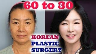 MY MOM DID PLASTIC SURGERY IN KOREA! | Sunnydahye