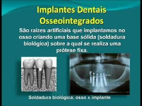 Jonas Cardoso Implante Dental e Prótese Fixa Protocolo