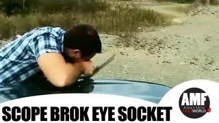 Scope broke eye socket -  Fails World