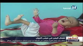 تقرير المشهد اليمني - الحوثي يقتل أكثر من ألفي طفل في تعز