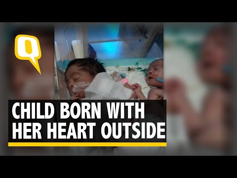 The Quint: Father Of Pakistani Baby Born With Heart Outside Body Seeks Help