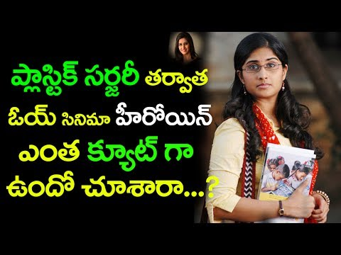 Xxx Mp4 ప్లాస్టిక్ సర్జరీ తర్వాత ఓయ్ సినిమా హీరోయిన్ ఎంత క్యూట్ గా ఉందో చూశారా Top Telugu Media 3gp Sex