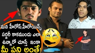 Celebrities BEFORE and AFTER Plastic Surgery | Ram Charan | Anushka | Sridevi | Allu Arjun