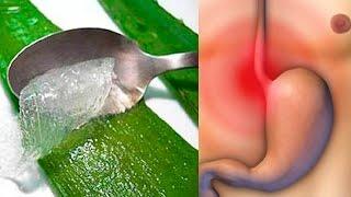 Hernia Hiatal Tratamiento con Aloe Vera - Aloe Vera para Hernia de Hiato