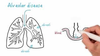 Airway disease versus alveolar disease