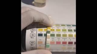 UTI dipstick test- Urine Analysis
