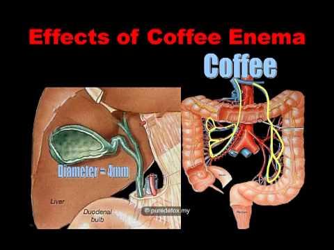 Xxx Mp4 What Is Coffee Enema 3gp Sex
