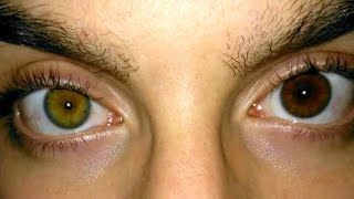 Ways Your Eye Color can CHANGE