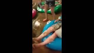 HEBOHH !!! Video 500 Gay Kulitnya Mengelupas Pasca Pesta Pelanginya Terbakar