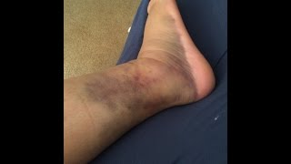 StoryTime With Sharpie! How I broke my ankle