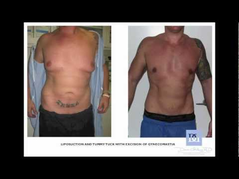 Breast reduction west palm beach