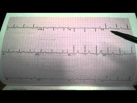 Cardiac EKG Tracings - ECG Reading Dr. Ben-Zur