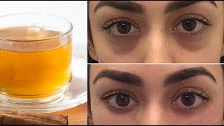 تعرف على أسهل و أفضل وصفة للتخلص من الهالات السوداء تحت العين !