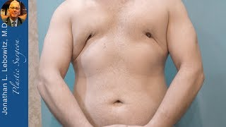 Fixing an EXTREME Botched Gynecomastia Surgery At The Long Island VaserLipo Center By Dr. Lebowitz