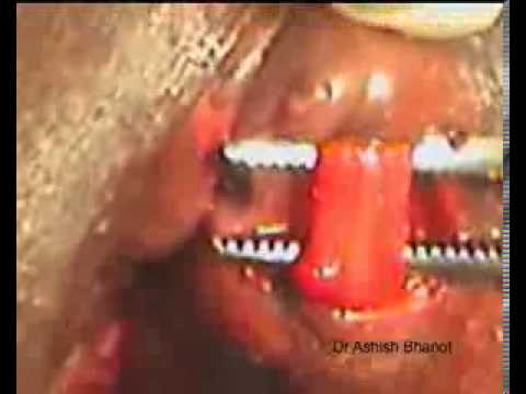 anal fissure surgery