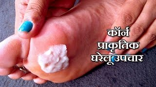 Corn Treatment in Hindi - कॉर्न के उपचार by Sachin Goyal Health Video 51