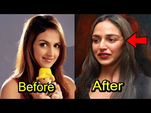 Top 8 Plastic Surgery Disaster Of Bollywood Actress | 2017