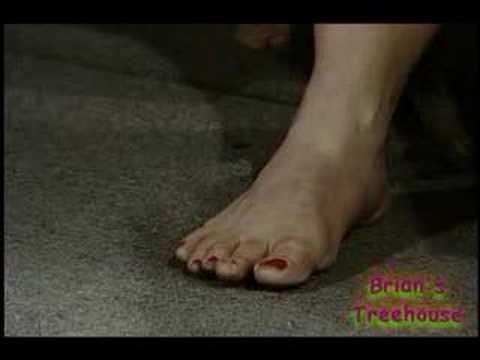 A Club For Feet or Just Club Feet