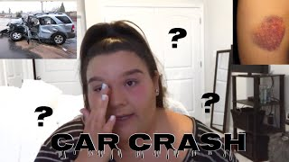 I WAS IN A BAD ACCIDENT! ( NOT CLICKBAIT)